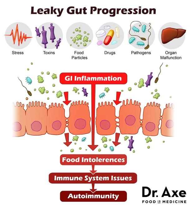 Leaky gut progression2